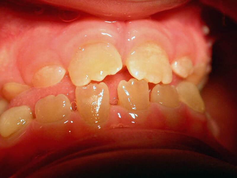 atelis-odontinogenesi